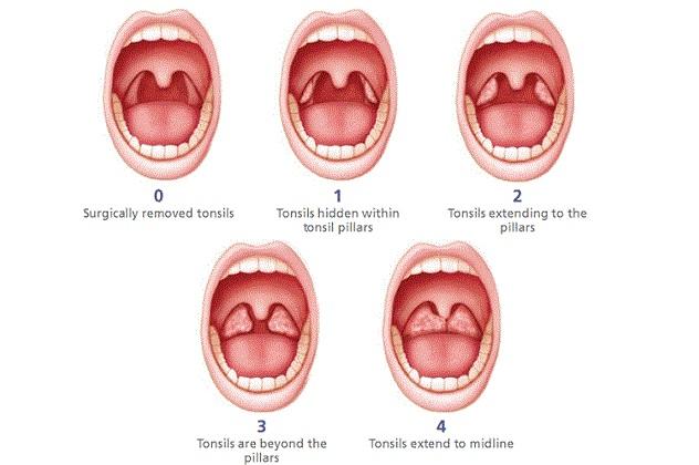 Осложнения при заболеваниях в горле
