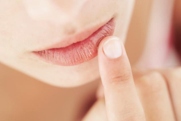 У женщины сухие губы