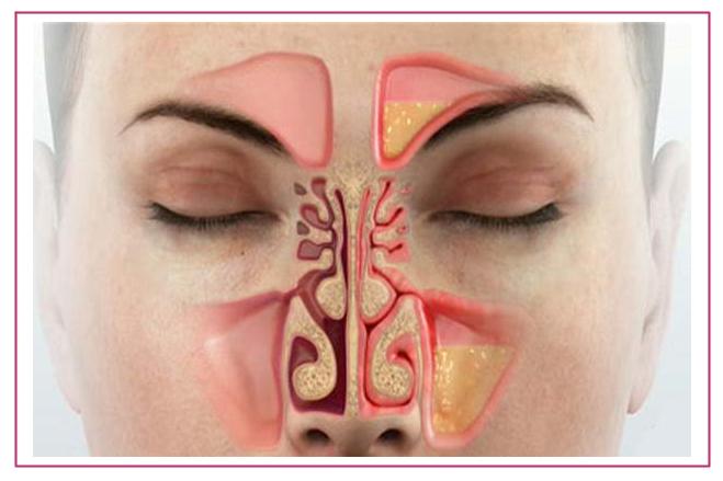 Женский нос