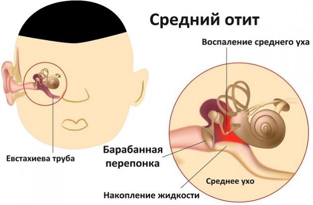 Как вылечить отит уха в домашних условиях у детей