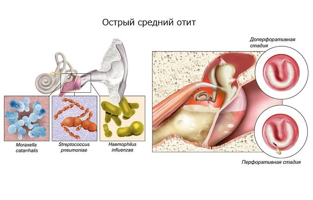 Лимфаденит лечение для детей