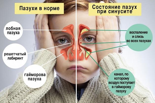 Схема лечения при остром гайморите