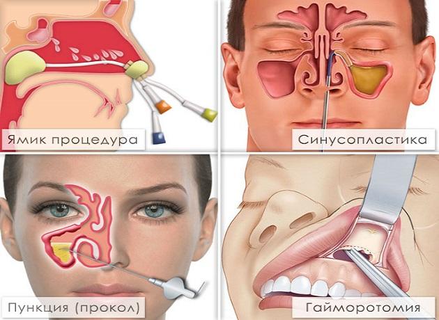 Виды лечения гайморита