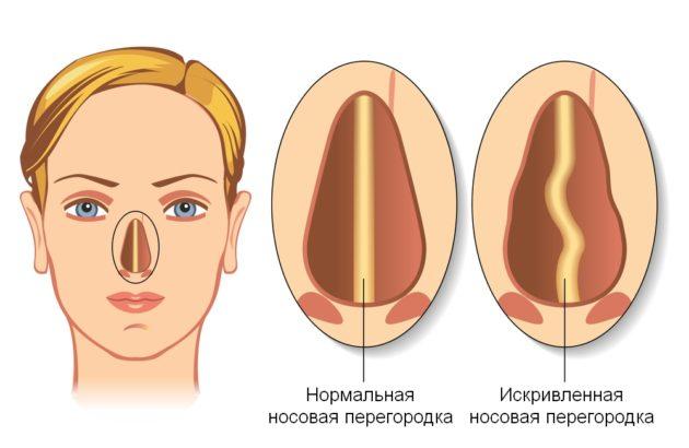 Носовая перегородка и ее деформация