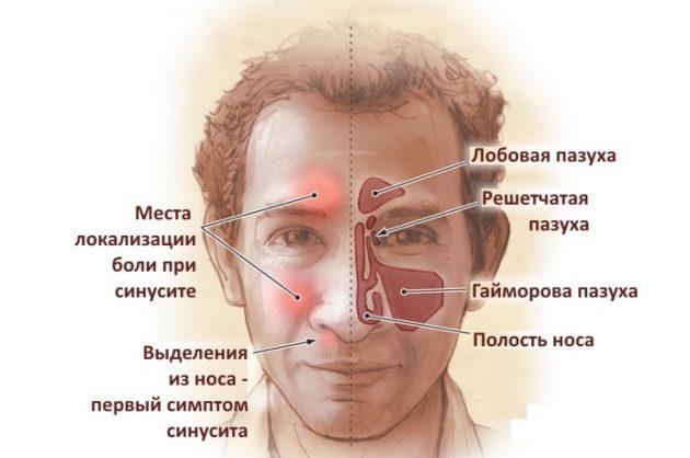 Острый синусит у ребенка