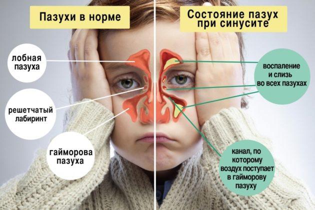 Синусит провоцируется отеком пазух носа