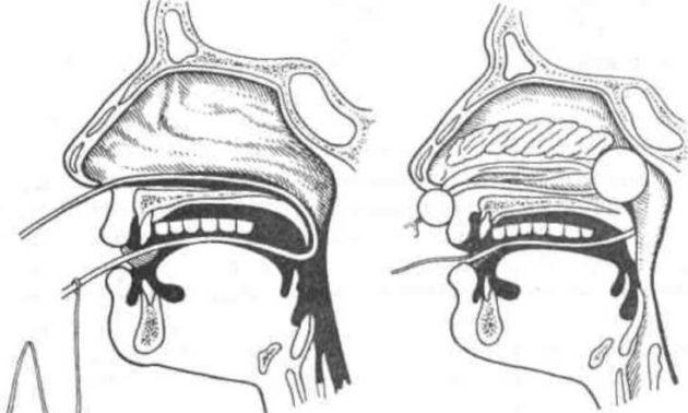 Задняя тампонада носа