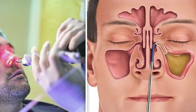 Баллонная синусопластика - наиболее безопасная операция при гайморите