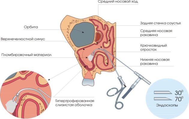 Эндоскопическая операция при гайморите