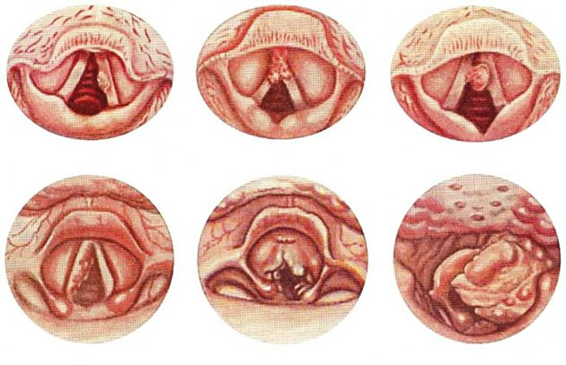 Рак горла может вызвать боль с одной стороны