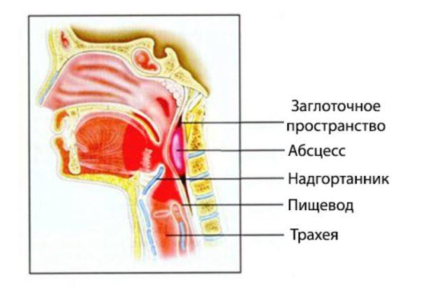 Заглоточный абсцесс может вызвать боль в горле с одной стороны