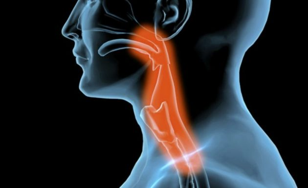 Кровь из горла и носа