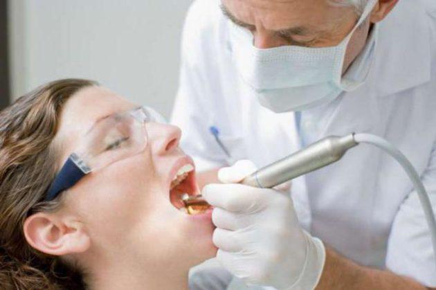 Перед проведением криодеструкции миндалин необходима санация полости рта