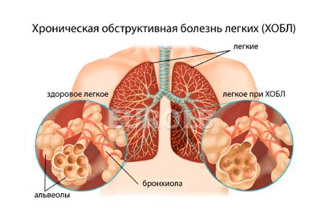 кашель без температуры при ХОБЛ