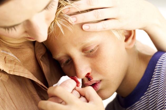 носовое кровотечение после удаления аденоидов у ребенка