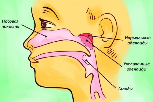 гипертрофия глоточной миндалины