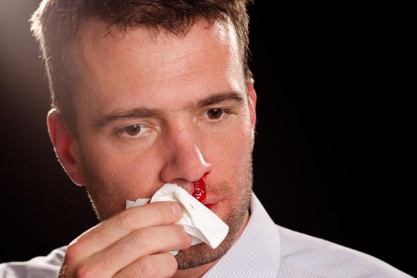 носовое кровотечение при раке носа