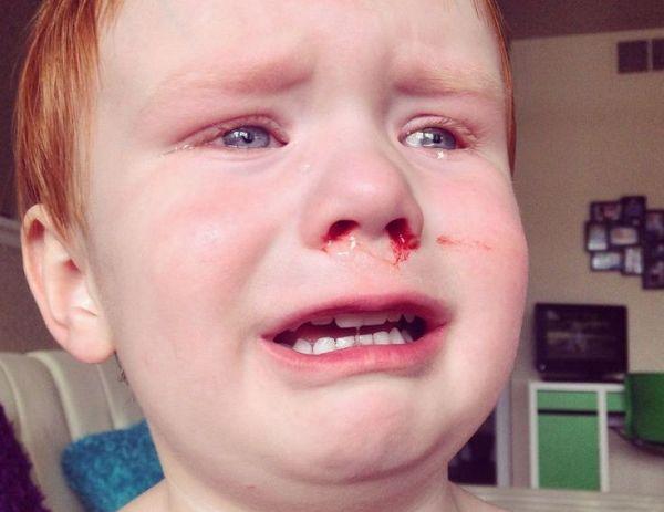 ребенок ударился носом