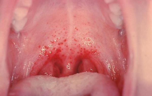Герпетическая инфекция фото сыпи у детей