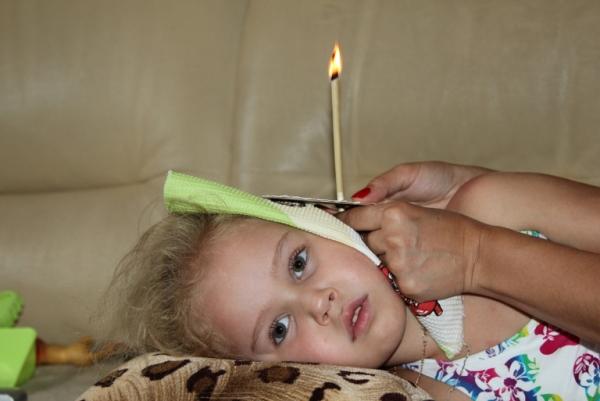 ушная свеча ребенку