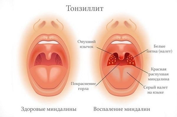 Как хронический тонзиллит влияет на осложнения после операции на суставах и позвоночнике