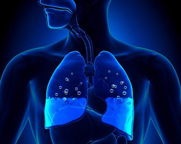 кардиогенный отек легких